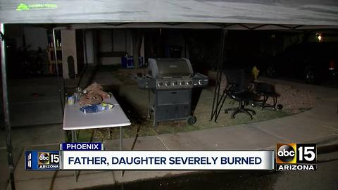 Girl and father severely burned in Phoenix