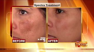 Get Radiant Skin with a Hollywood Laser Peel