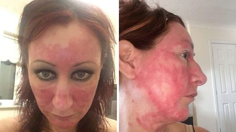 Mum-of-two reveals near four-year battle with skin burning that looked like an 'acid attack' after quitting steroid creams