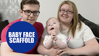 Baby boy became the first in the world to undergo a miracle face operation - Video