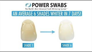Valentines Day Smile With Power Swabs