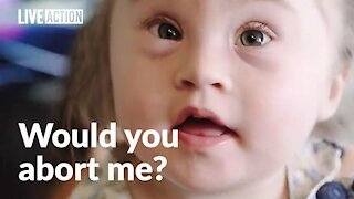 Abortion rejected by parents of child with Down syndrome