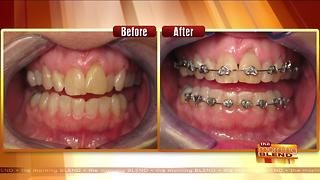 A Safe & Affordable Way to Straighten Teeth Fast - Video