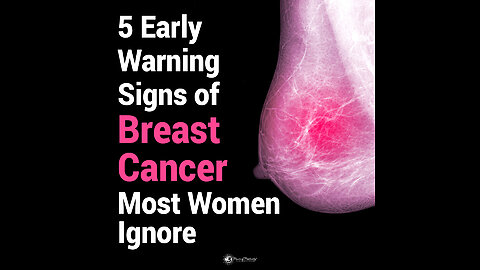 5 Early Warning Signs of Breast Cancer Most Women Ignore