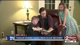 Toddler burned in house fire makes miraculous recovery - Video