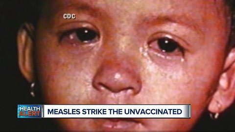 Measles outbreak grows in area with low vaccination rate, most patients unimmunized