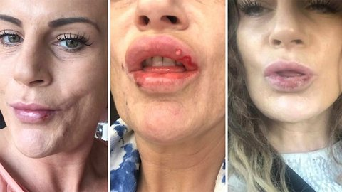 Botched! Mum issues lip filler warning after surgery leaves her lips covered in sores and scars