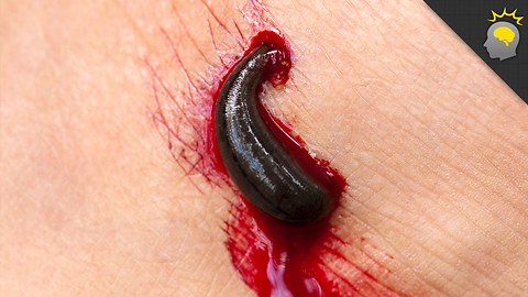 Stuff to Blow Your Mind: It's a Leech-Eat-Worm World - Science on the Web