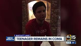 Teenager remains in coma after boating accident on Bartlett Lake - Video
