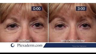 Drastically reduce fine lines and wrinkles on your face - Video