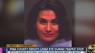 Pima County Sheriff's deputy loses eye after kicked by DUI suspect - Video