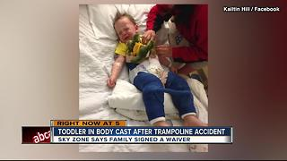 3YO in body cast after trampoline accident - Video