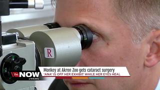 Surgeons in NE Ohio perform eye surgery on tiny monkey for the first time - Video