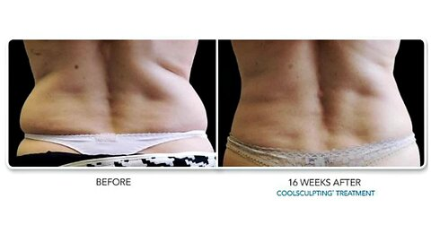"""Hollywood Body Laser- """"Take It Further"""" Coolsculpting"""