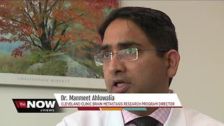 Glioblastoma Explained: Cleveland Clinic Doctor Answers Questions After Sen. McCain Diagnosis