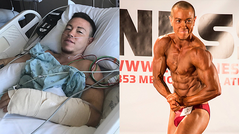 Trans Bodybuilder Has Phalloplasty Surgery | MY TRANS LIFE