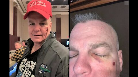 Ex-NYPD cop punched at his own birthday party after red cap mistaken for MAGA hat