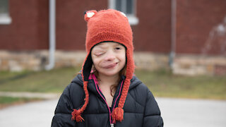 Brave 10-Year-Old Battles Rare Facial Tumour | BORN DIFFERENT