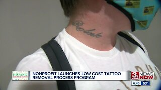 Nonprofit launches low cost tattoo removal process program