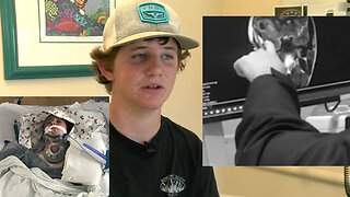 Florida teen survives after boat anchor punctures skull