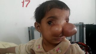 Pakistani girl with nose bigger than two tennis balls awaits life-changing surgery