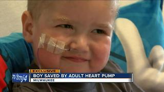 Experimental procedure saves 4-year-old's heart - Video