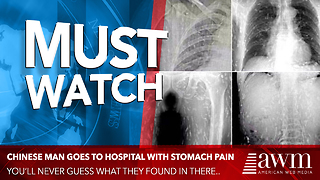 Man Gets Deathly Ill After Dinner. Doctors Look At X-ray, Say It's Worst Case They've Ever Seen - Video