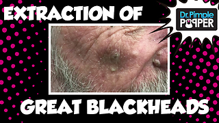 Dr Pimple Popper: Blackheads or Sebaceous Filaments on the Nose? Extractions - Video