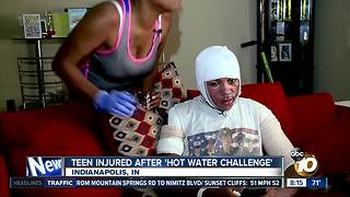 Teen injured after 'hot water challenge' - Video