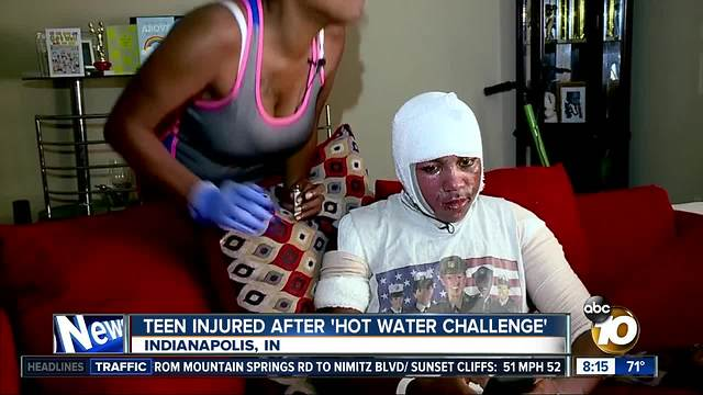 Teen injured after 'hot water challenge'