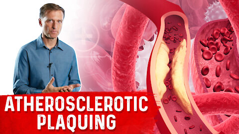 Protocol for Calcified Plaque in Your Arteries
