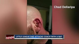 Police: Little League coach attacked with aluminum baseball bat - Video