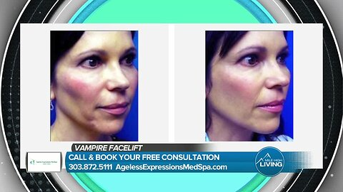 Ageless Expression Med Spa- Vampire Facelift