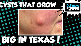 They Grow Cysts BIG in Texas... - Video