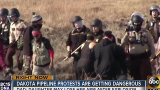 A Dakota Access pipeline protester could lose an arm - Video