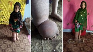 Seven-year-old girl from Pakistan can't stand up as her leg balloons to three times its normal size - Video