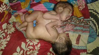 Woman in India dies minutes after giving birth to conjoined twins attached at abdomen