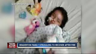 Little girl severely burned in Bradenton house fire improving - Video