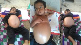 Four-year-old Pakistani boy suffering from rare disease has swollen belly the size of beach ball  - Video