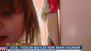 Local Toddler Battles Rare Brain Disorder - Video