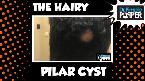 A Very HAIRY Removal on THIS Scalp Cyst!