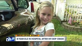 Police are looking for hit-and-run driver who injured an 8-year-old in Stark County - Video
