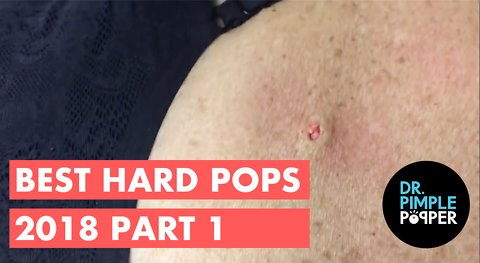 Best of Hardpops Part 1 2015 Revisited 2018!