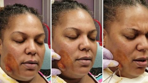 Huge abscess erupts like volcano on woman's face in graphic video