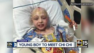 Young burn victim to meet Arizona therapy dog - Video