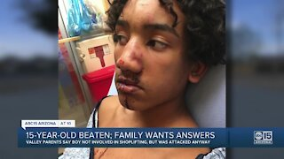 Valley 15-year-old beaten; family wants answers