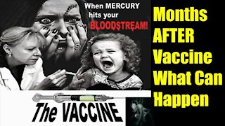 Months After Vaccine - you will experience these Side Effects