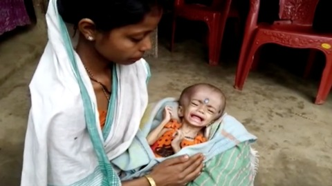 Destitute parents hope for donation to save dying daughter with 20-inch head