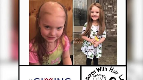 The non-profit Children With Hair Loss gives kids with medically related hair loss a chance to receive a custom wig for free.