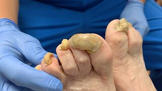 NAILED IT! DOCTOR TACKLES HUGE OVERGROWN NAIL AND FUNGAL INFECTION IN SATISFYING TREATMENT VIDEO